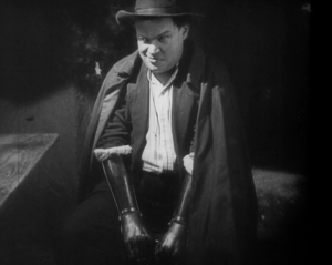 The Hands of Orlac, 1924. The loss of hands, arms, amputation, common sights on the streets of post WWI.